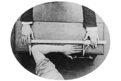 Forearm Measurement Overhead View
